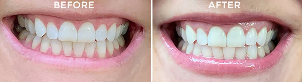 Smile Brilliant teeth whitening review — the results are amazing!